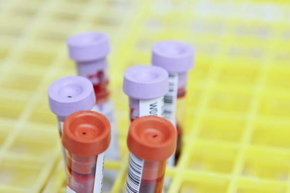 Parents & Children Familial DNA Test