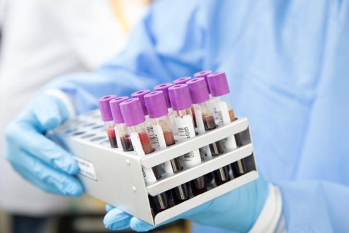 What is AABB Accreditation for DNA Testing?